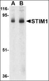 AP30837PU-N - STIM1 / GOK