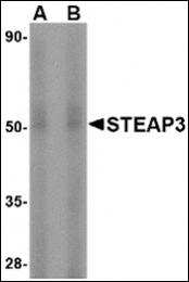 AP30835PU-N - STEAP3 / TSAP6