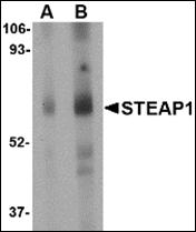 AP30833PU-N - STEAP / STEAP1