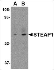 AP30832PU-N - STEAP / STEAP1