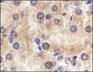 AP30829PU-N - IL1RL1 / ST2