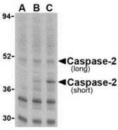 AP30196PU-N - Caspase-2