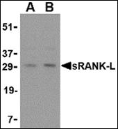 AP30826PU-N - CD254 / RANKL