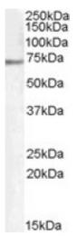 AP16415PU-N - PCK2