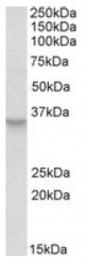 AP20125PU-N - Peroxin 2 / PEX2 / RNF72