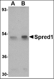AP30821PU-N - SPRED1