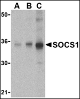AP30818PU-N - SOCS1
