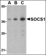 AP30817PU-N - SOCS1