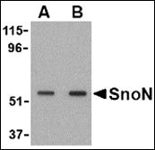 AP30816PU-N - SKIL / SnoN
