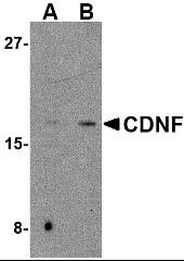 AP30221PU-N - CDNF