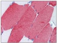 SM1372P - Fast skeletal muscle Troponin T
