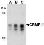 AP30243PU-N - CRMP1 / DPYSL1