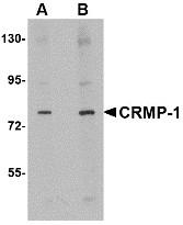 AP30244PU-N - CRMP1 / DPYSL1
