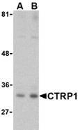 AP30246PU-N - C1QTNF1