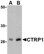 AP30247PU-N - C1QTNF1