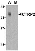 AP30249PU-N - C1QTNF2