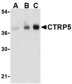 AP30254PU-N - C1QTNF5