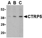 AP30255PU-N - C1QTNF5