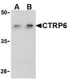 AP30256PU-N - C1QTNF6