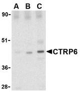 AP30257PU-N - C1QTNF6
