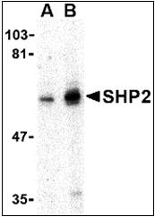 AP30778PU-N - PTPN11 / PTP2C
