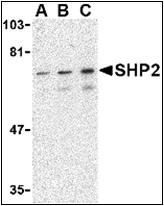 AP30777PU-N - PTPN11 / PTP2C