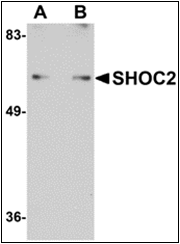 AP30776PU-N - SHOC2