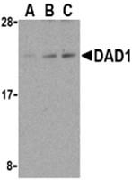 AP30271PU-N - DAD1