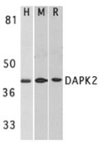 AP30272PU-N - DAPK2 / DRP-1