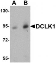 AP30276PU-N - Doublecortin-like kinase 1