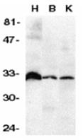 AP30281PU-N - TNFRSF6B / DCR3