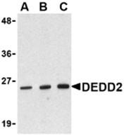 AP30285PU-N - DEDD2