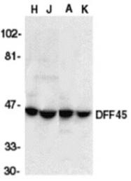 AP30289PU-N - DFFA / ICAD