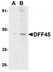 AP30290PU-N - DFFA / ICAD