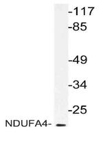 AP20126PU-N - NDUFA4