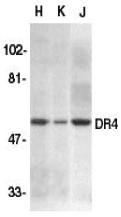 AP30300PU-N - CD261 / TRAILR1