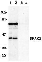 AP30303PU-N - STK17B / DRAK2