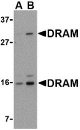 AP30304PU-N - DRAM1