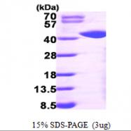 AR09578PU-L - Galactokinase 1