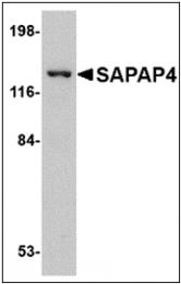 AP30752PU-N - DLGAP4 / SAPAP4