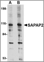 AP30750PU-N - DLGAP2