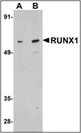 AP30746PU-N - RUNX1