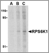 AP30741PU-N - RPS6KA1