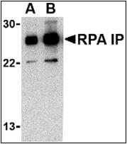 AP30740PU-N - RPAIN / RIP
