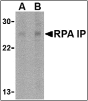 AP30739PU-N - RPAIN / RIP