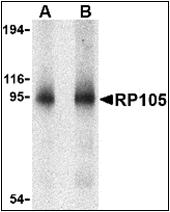 AP30737PU-N - CD180 / RP105