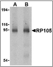 AP30736PU-N - CD180 / RP105