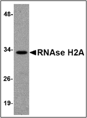AP30734PU-N - RNASEH2A