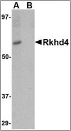 AP30733PU-N - MEX3A / RKHD4