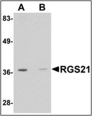 AP30716PU-N - RGS21
